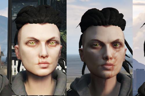 Facial scars MPplayer